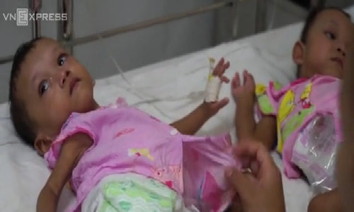 Doctors separates rare case of twins conjoined at pelvis in Vietnam