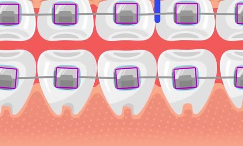 Vì sao niềng răng mất nhiều thời gian? - ảnh 1
