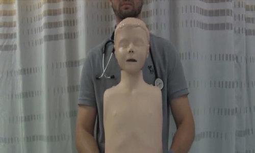 Hướng dẫn thủ thuật Heimlich khi trẻ tỉnh