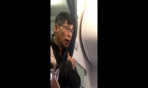 Nam hành khách chảy máu miệng sau khi bị hàng không Mỹ kéo lê khỏi máy bay