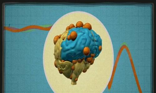 Ảnh hưởng của các loại thức ăn đến bộ não
