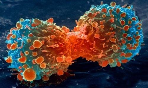 Lý do con người chưa thể chữa trị tận gốc bệnh ung thư