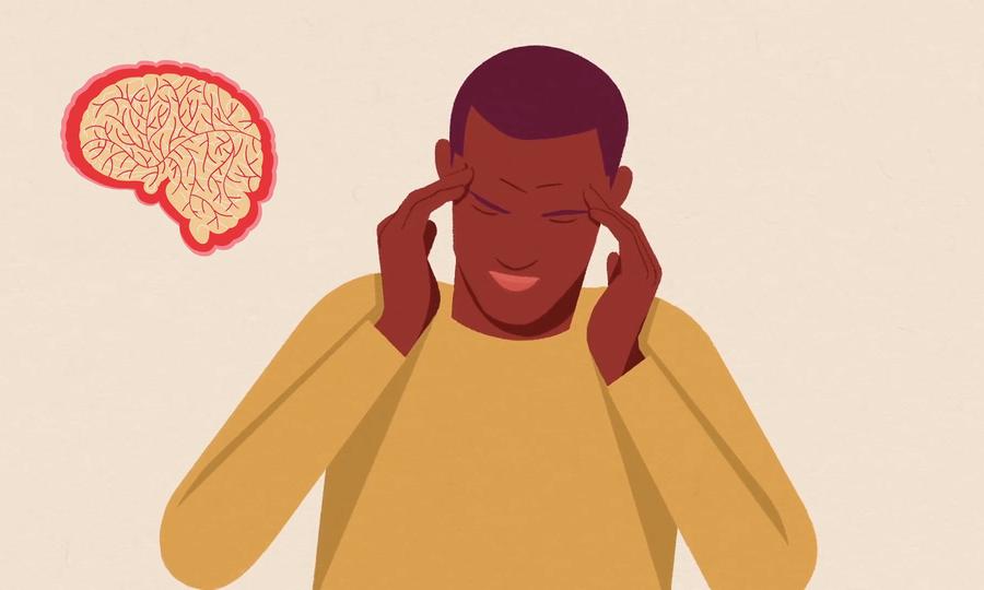 Điều gì xảy ra trong não bộ khi đau nửa đầu?